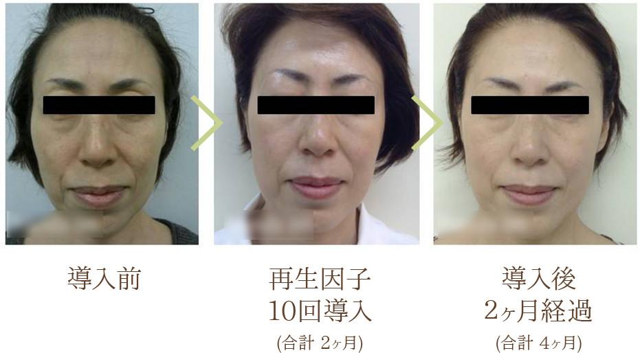 導入前・再生因子10回導入(合計2ヶ月)・導入後2ヶ月経過(合計 4ヶ月)